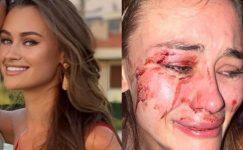 Ünlü model İzmir'de güvenlik görevlilerinin saldırısına uğradı iddiası