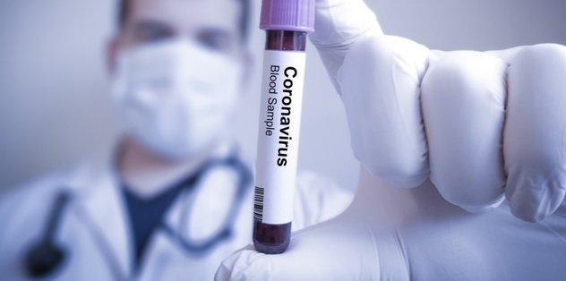 Corona virüsünde yeni semptom ortaya çıktı